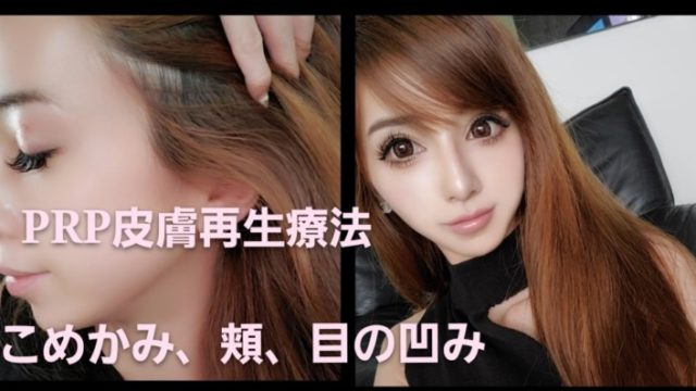 PRP皮膚再生療法をした顔効果